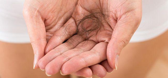 Hervorragend L'alopécie traitement de perte de cheveux TI75